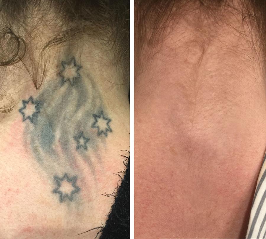 usuwanie_tatuażu